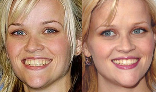 Chirurgia estetica labbra Reese Witherspoon