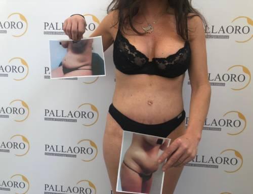 Addominoplastica post gravidanza su addome pendulo e adiposo