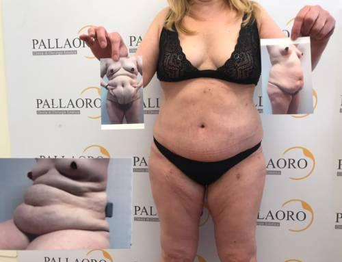 Addominoplastica su addome marcatamente rilassato e adiposo