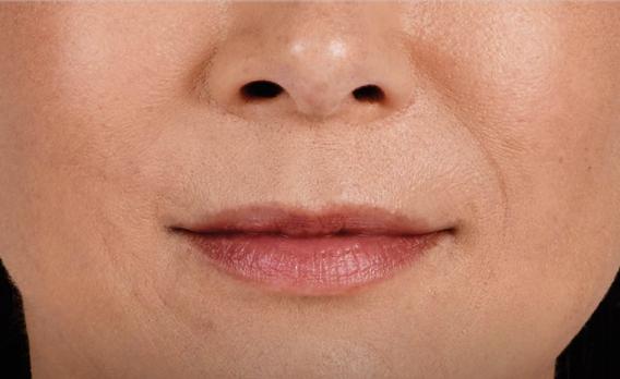acido ialuronico labbra 01 foto dopo