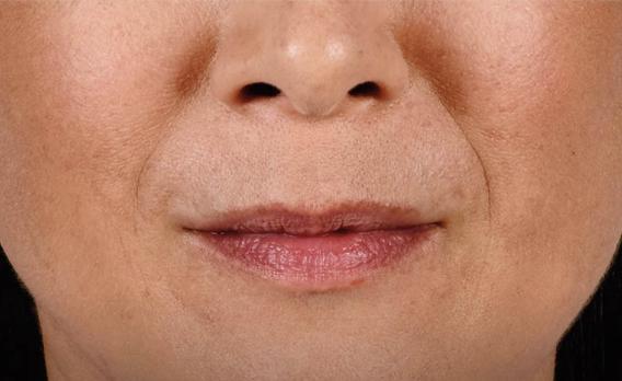 acido ialuronico labbra 01 foto prima