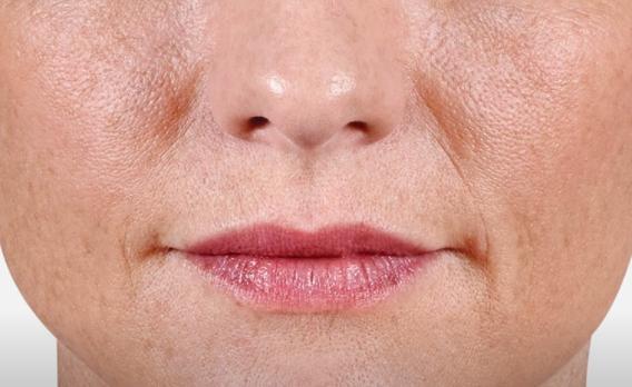 acido ialuronico labbra 02 foto prima