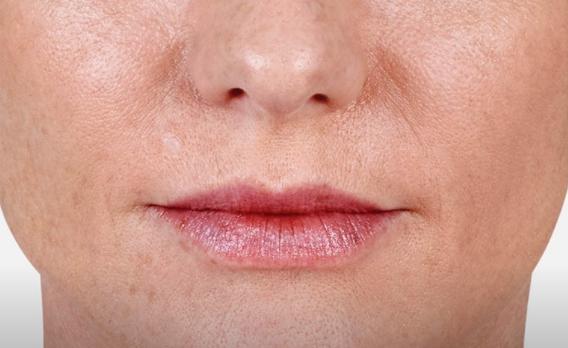 acido ialuronico labbra 02 foto dopo