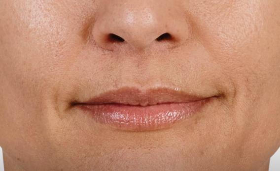 acido ialuronico labbra 03 foto dopo