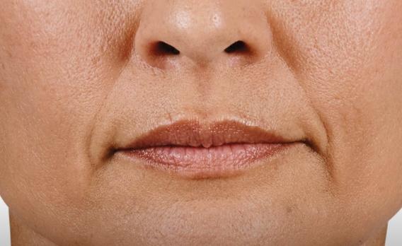acido ialuronico labbra 03 foto prima