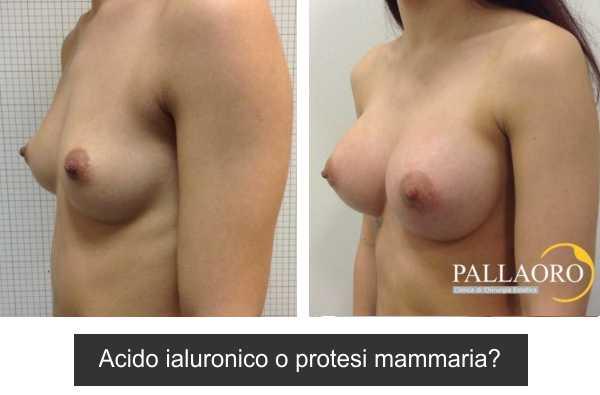 acido ialuronico o protesi mammaria