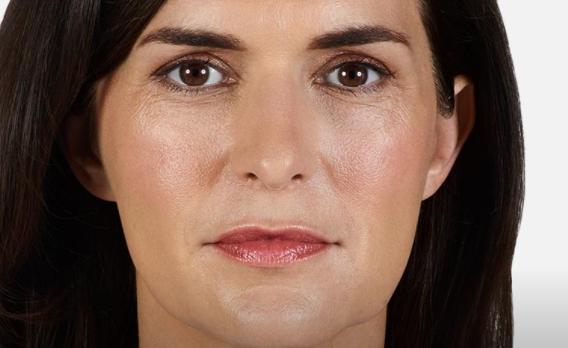 acido ialuronico piega naso labiale 01 foto dopo