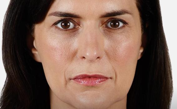 acido ialuronico piega naso labiale 01 foto prima