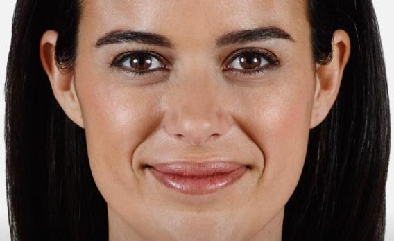 acido ialuronico piega naso labiale 02 foto prima