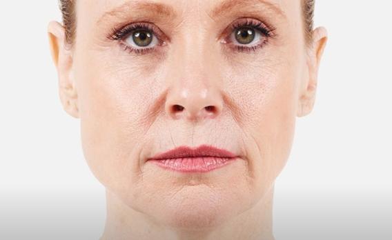 acido ialuronico piega naso labiale 03 foto prima