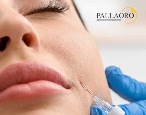Acido ialuronico pieghe naso labiali
