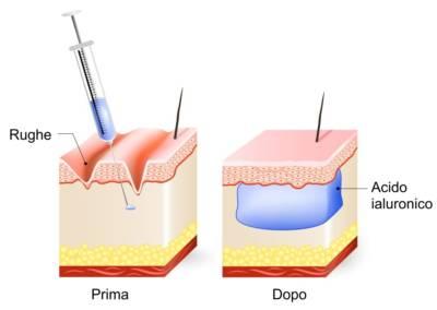 Acido ialuronico labbra: Tecnica