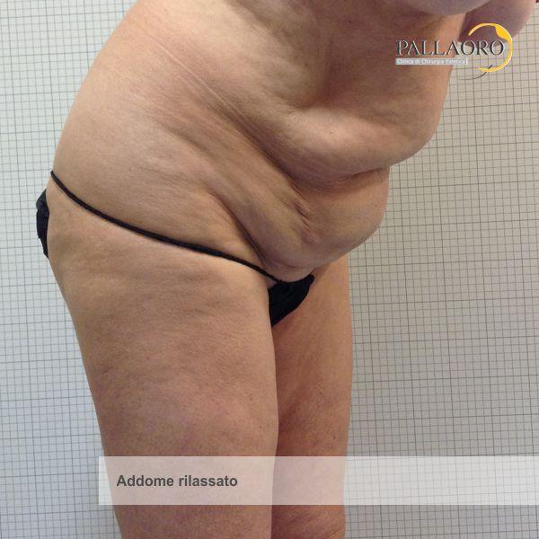 chirurgia estetica addome rilassato