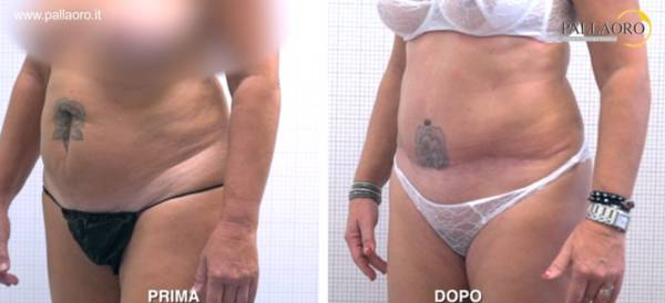 Addominoplastica e liposuzione addominale foto