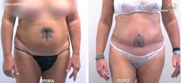 Addominoplastica e liposuzione addominale foto frontale