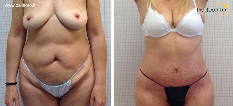 addominoplastica Torino. questa paziente ha rimodellato e ringiovanito il corpo.