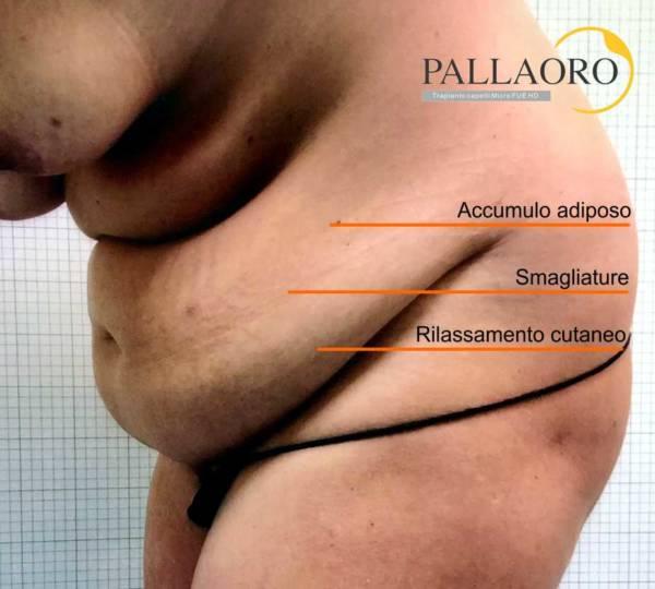 addominoplastica è indicata per l' addome rilassato e adiposo