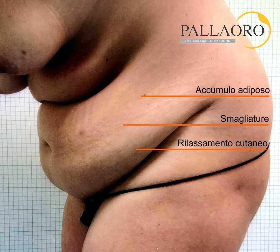 addominoplastica gravidanza