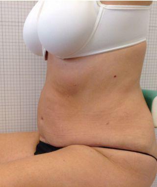 addominoplastica mastoplastica riduttiva foto