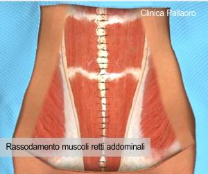 rassodamento muscolare