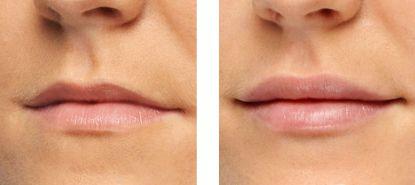 aumento labbra prima dopo foto