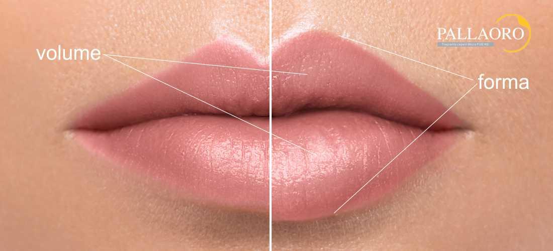 aumento labbra con filler labbra