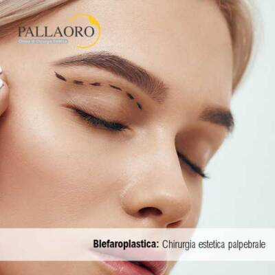 blefaroplastica chirurgia estetica palpebrale