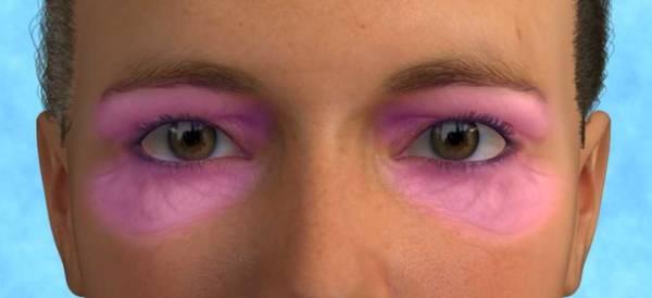 blefaroplastica laser