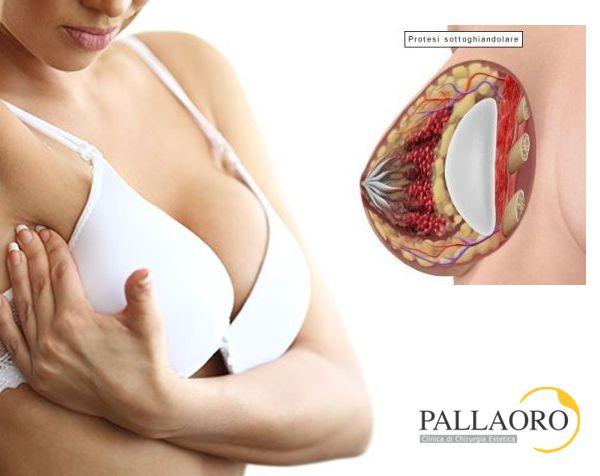 capsulectomia protesi