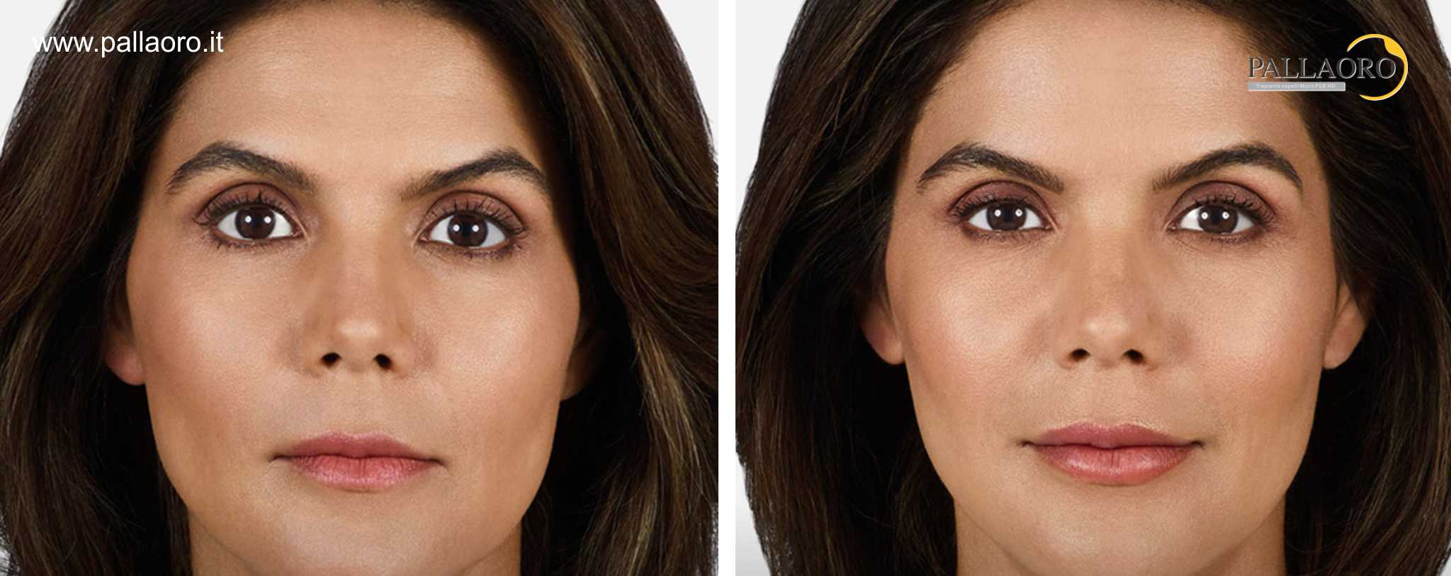 Chirurgia estetica labbra foto prima dopo