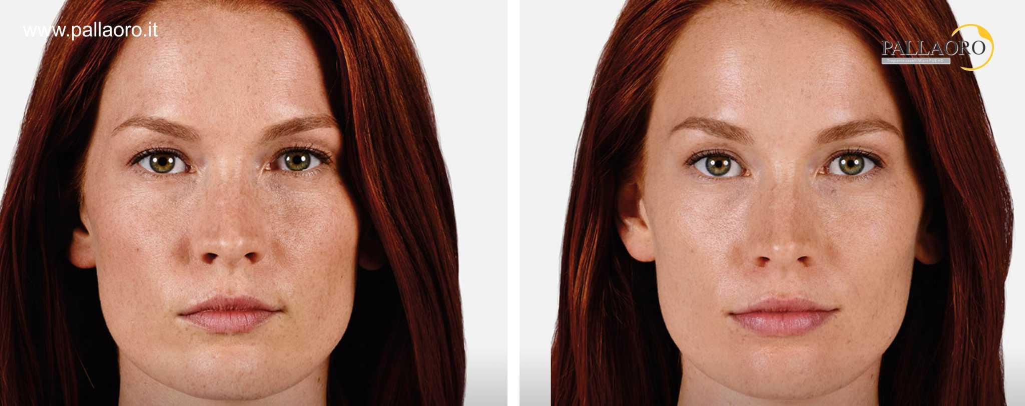 Chirurgia estetica labbra foto prima dopo 2