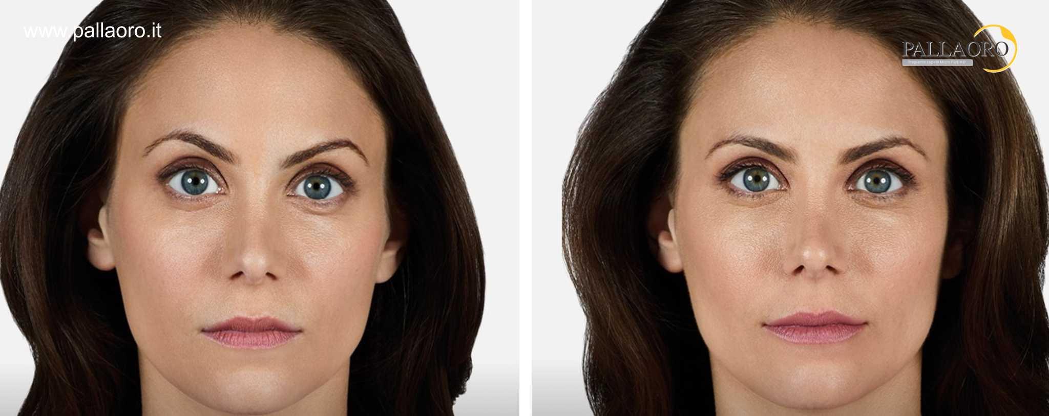 Chirurgia estetica labbra foto prima dopo 5