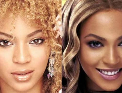Chirurgia Estetica Labbra: VIP – Beyonce