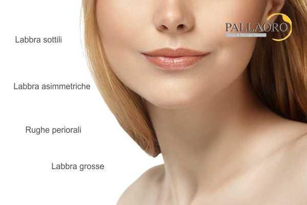 chirurgia estetica labbra: inestetismi