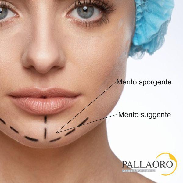 chirurgia estetica mento mentoplastica