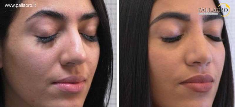Rinoplastica Firenze - chirurgia estetica naso aquilino e grande 2005