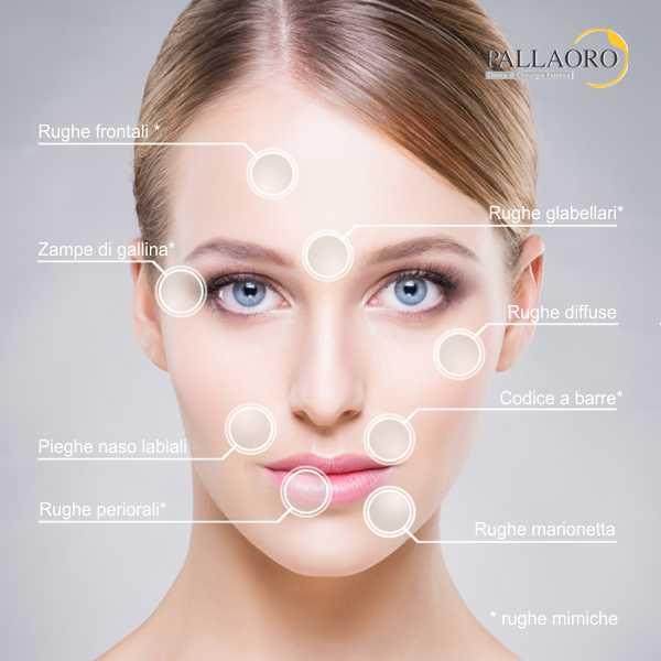 chirurgia estetica rughe tipi
