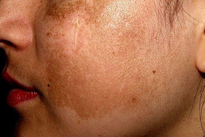 macchie sulla pelle del viso: cloasma gravidico