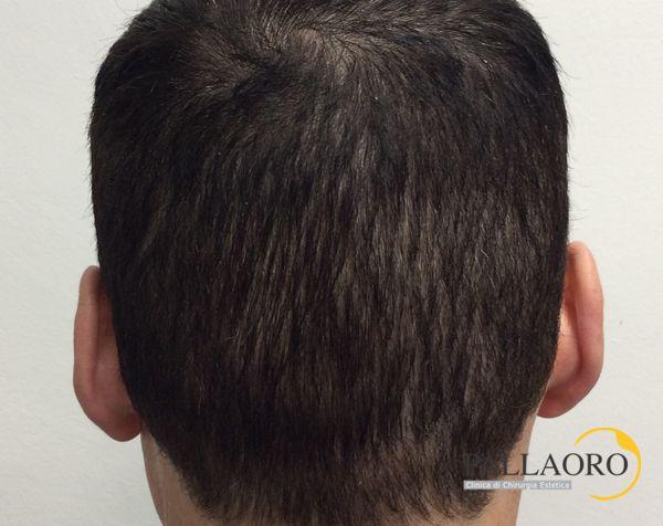 coprire cicatrice trapianto capelli dopo