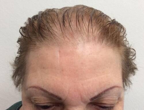 Trapianto capelli femminile