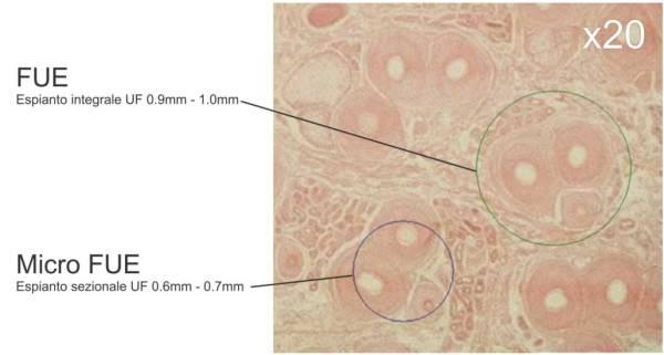 Espianto sezionale della unità follicolare con il trapianto capelli Micro FUE