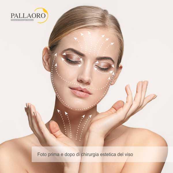 chirurgia estetica viso foto