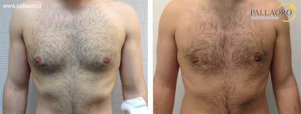 Chirurgia estetica seno maschile: Foto ginecomastia falsa