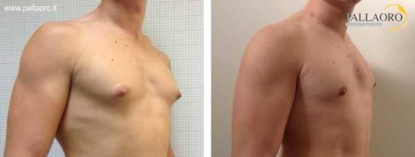 Chirurgia estetica seno maschile: Foto