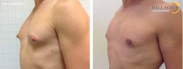 Chirurgia estetica seno maschile: Foto ginecomastia vera lat.