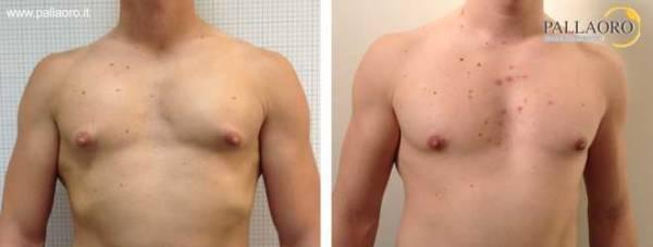 Chirurgia estetica seno maschile: Foto ginecomastia vera