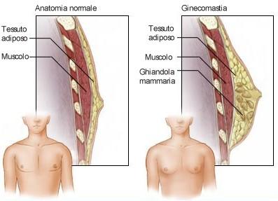 Seno maschile normale e con ginecomastia