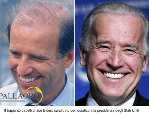 Trapianto capelli Vip – Joe Biden