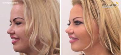 chirurgia estetica viso: lifting