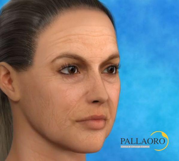 lifting viso complicanze trans e post operatorie